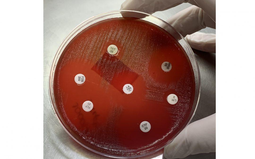 Antibiograma é ferramenta essencial para determinar o tratamento antimicrobiano mais eficaz, alerta especialista